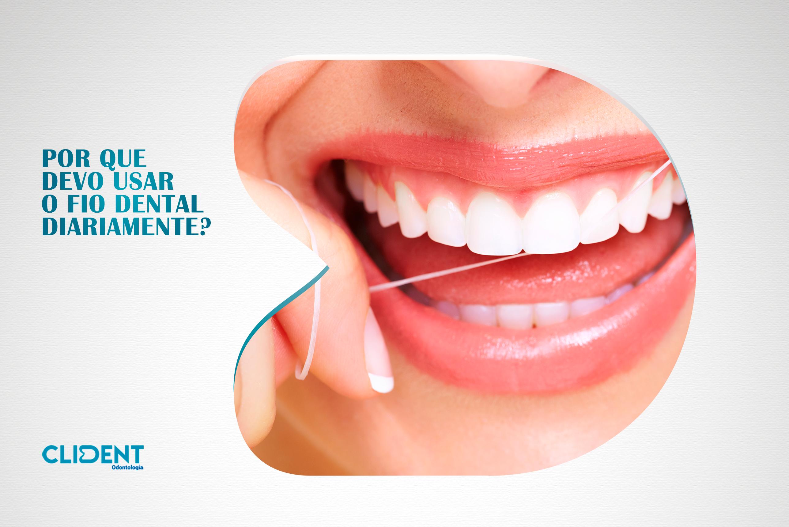 Por que devo usar o fio dental diariamente?
