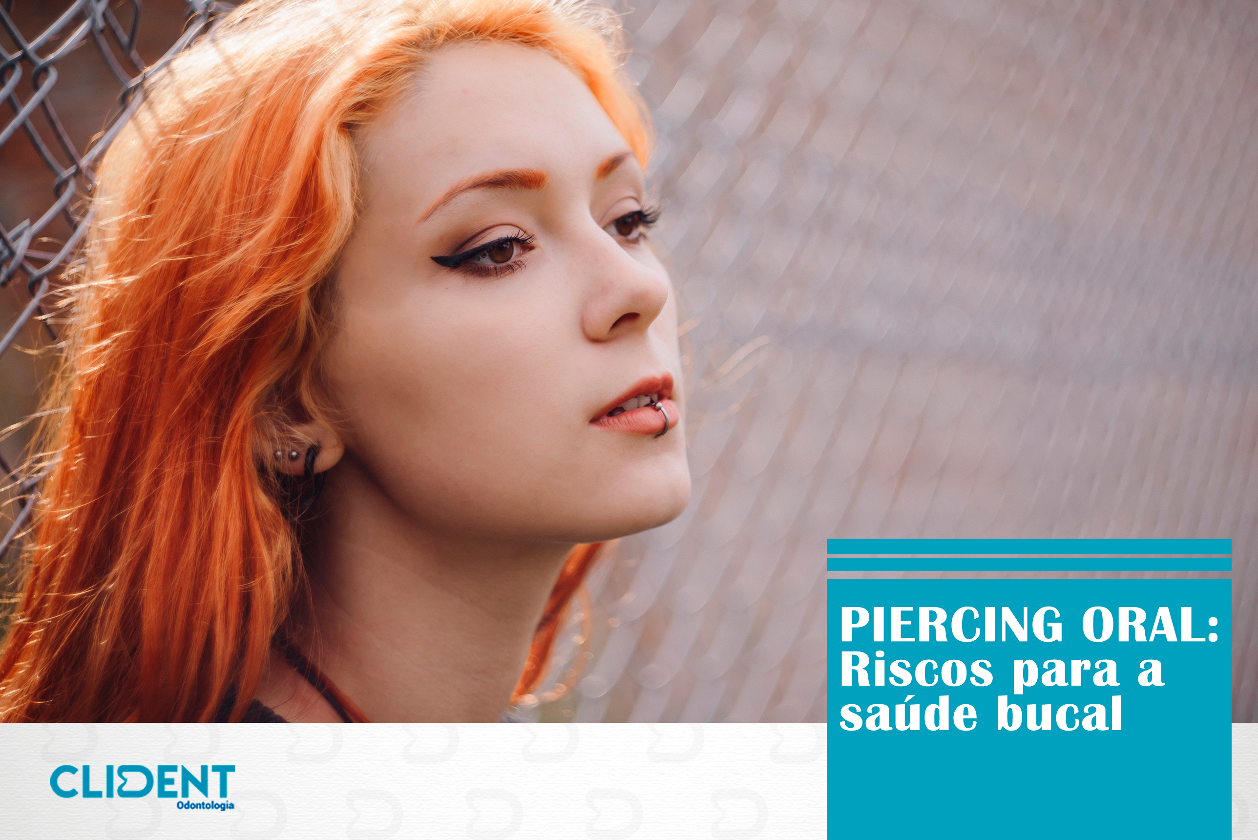 Riscos do piercing oral para a saúde bucal