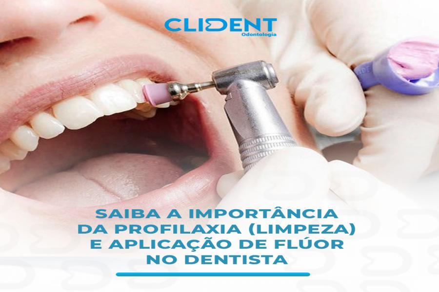 A importância da profilaxia (limpeza) e aplicação de flúor no dentista