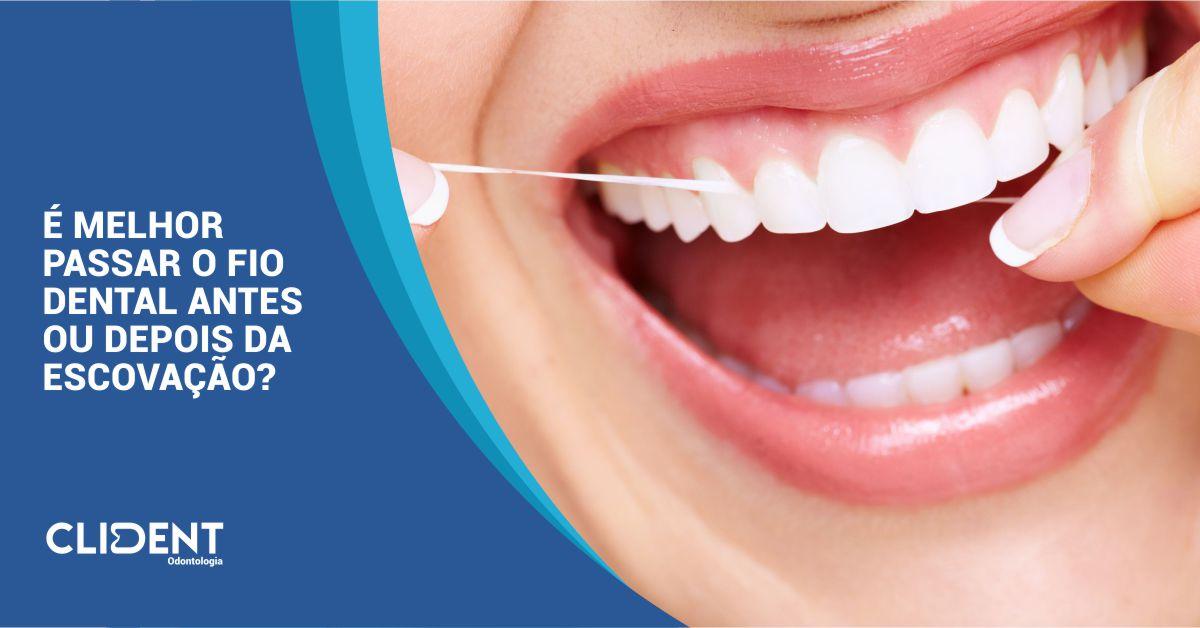 É melhor passar o fio dental antes ou depois da escovação?