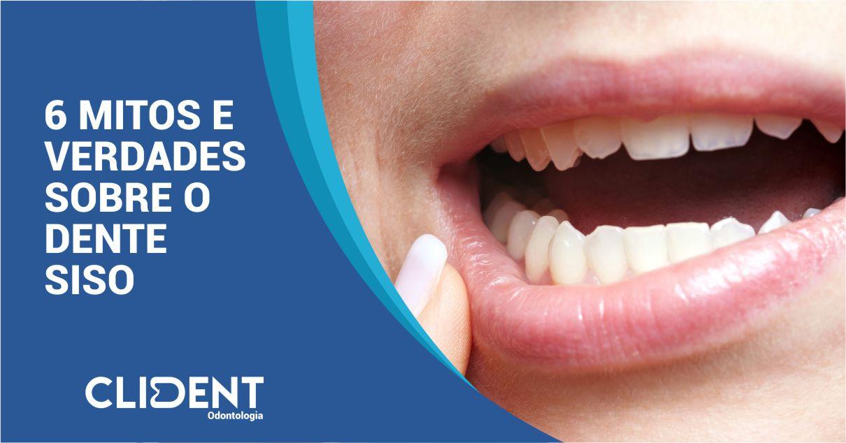 6 mitos e verdades sobre o dente siso