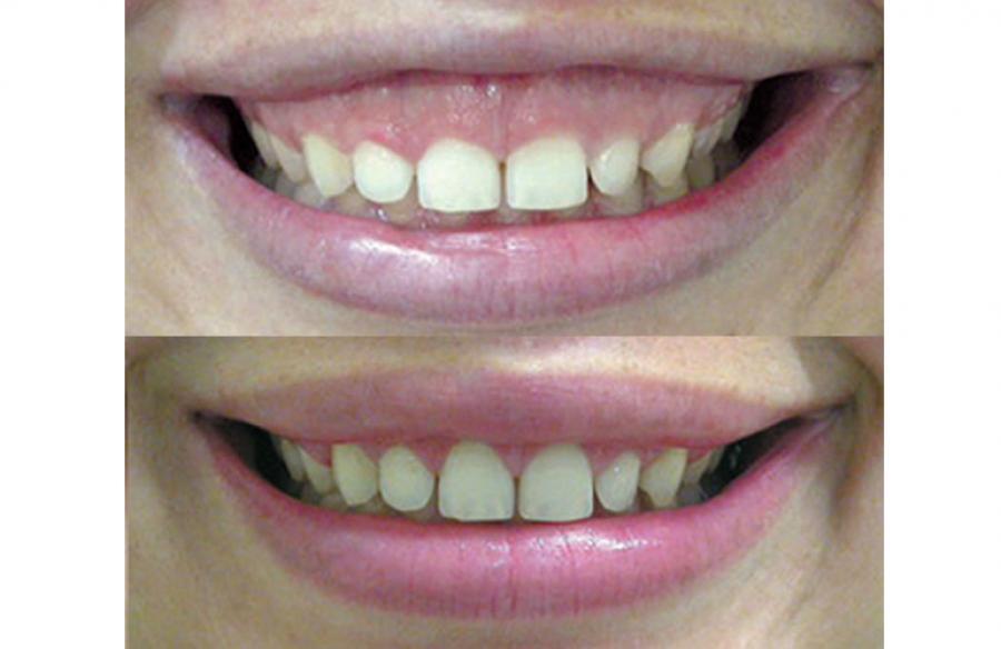 Tratamento multidisciplinar: Estética, toxina botulínica e periodontia.