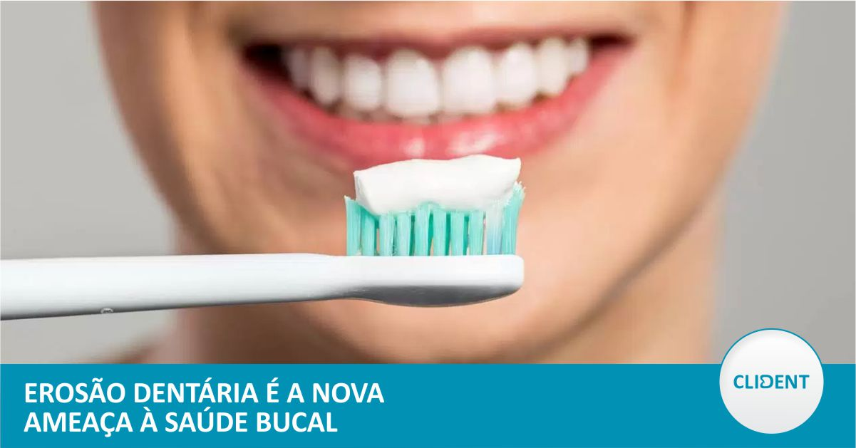 Erosão dentária é a nova ameaça à saúde bucal