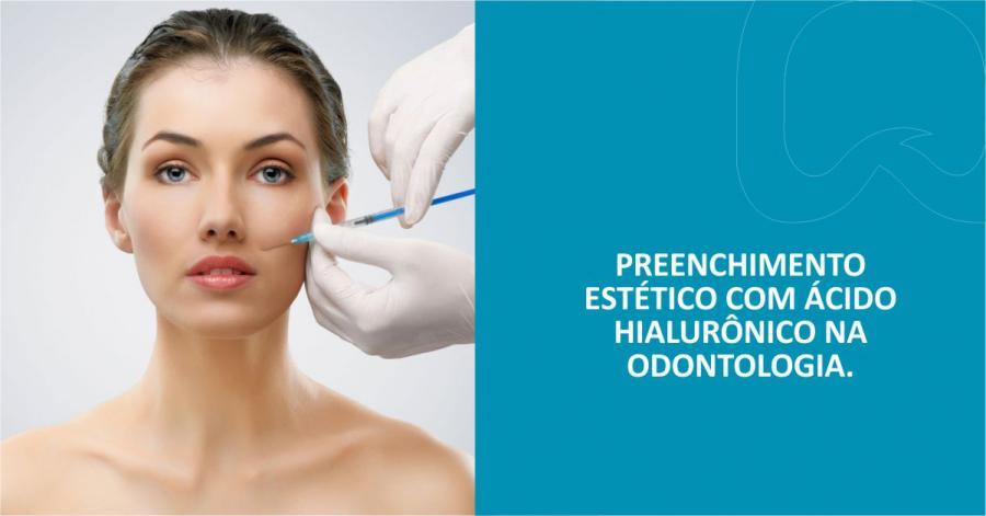 Preenchimento Estético com Ácido Hialurônico na Odontologia