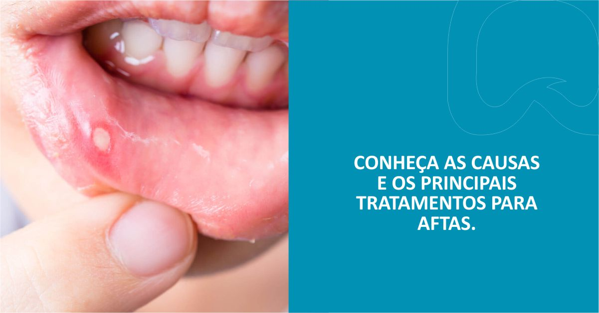Conheça as causas e os principais tratamentos para aftas