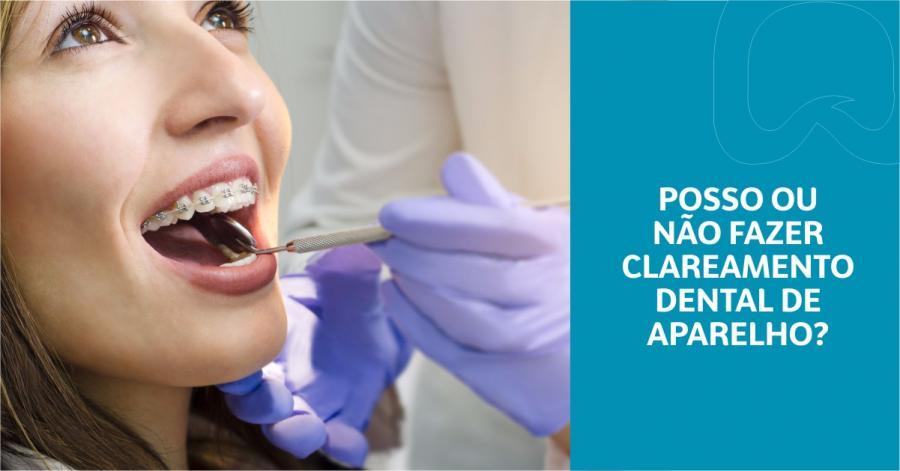 Posso ou não fazer clareamento dental usando aparelho?