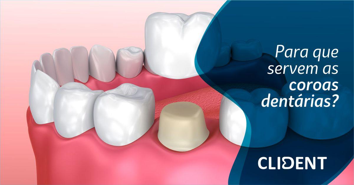 Para que servem as coroas dentárias?