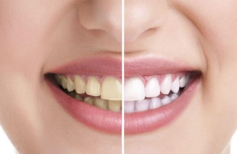 Resolvendo algumas dúvidas sobre Clareamento Dental