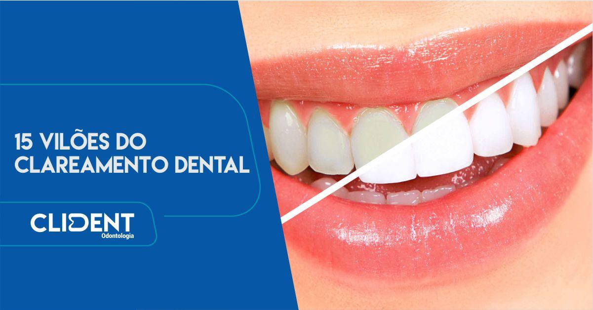 15 vilões do clareamento dental